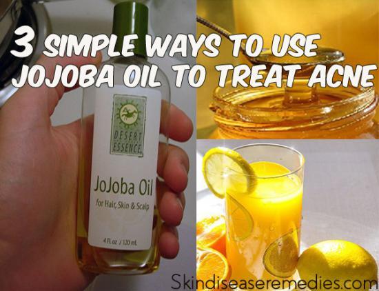 jojoba-oil-for-acne