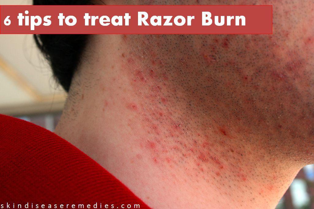 tips to get rid of razor burn