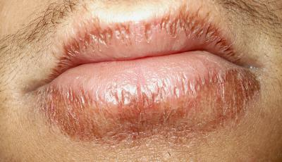 itchy-lips-chapped-lips